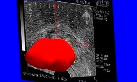 3D Reconstruction of Prostate from Ultrasound Images